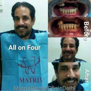 مترجم طبي ومنسق طبي في دلهي عاصمة الهند